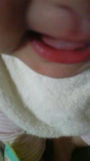 歯が生えた